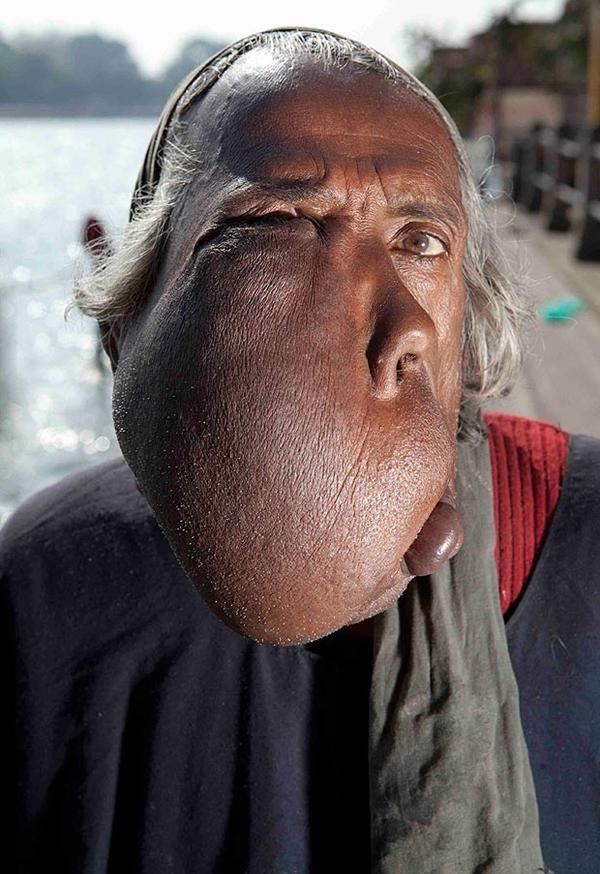 Người đàn ông có mặt biến dạng vì khối u khổng lồ 2