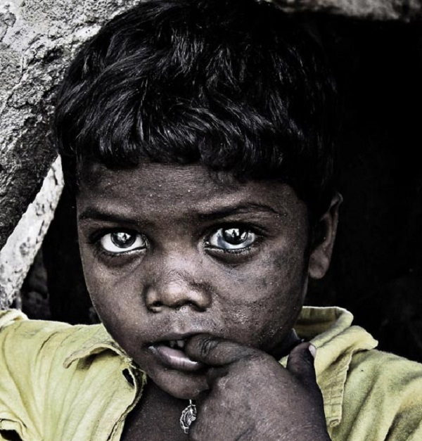 Những hình ảnh giật mình về nạn đói và sự lãng phí 6
