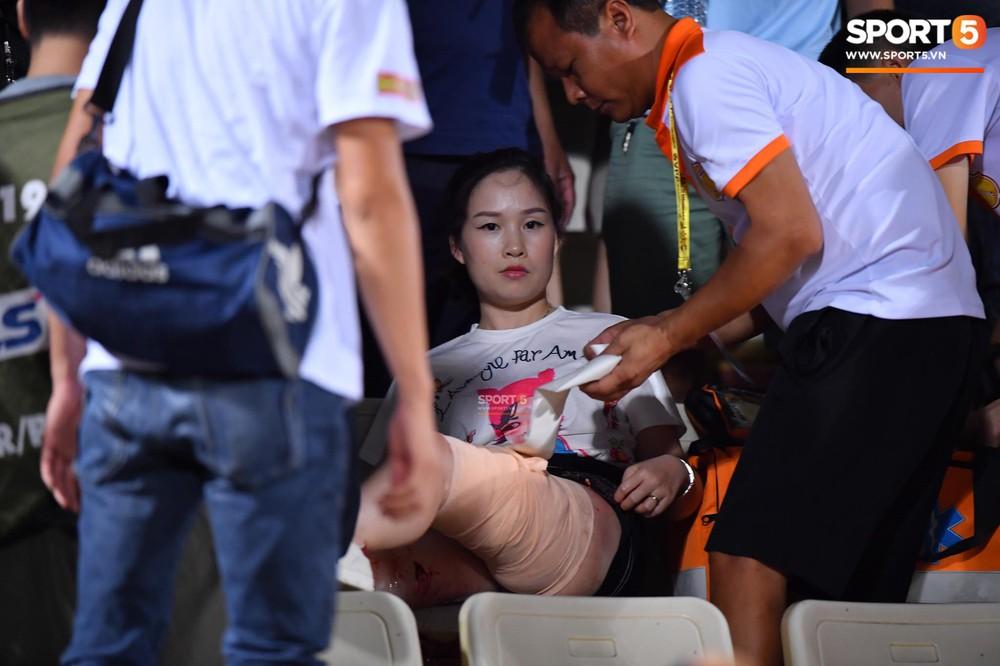 Fan nữ đổ máu vì bị pháo bắn trúng trên khán đài trận Hà Nội FC vs Nam Định - Ảnh 4.
