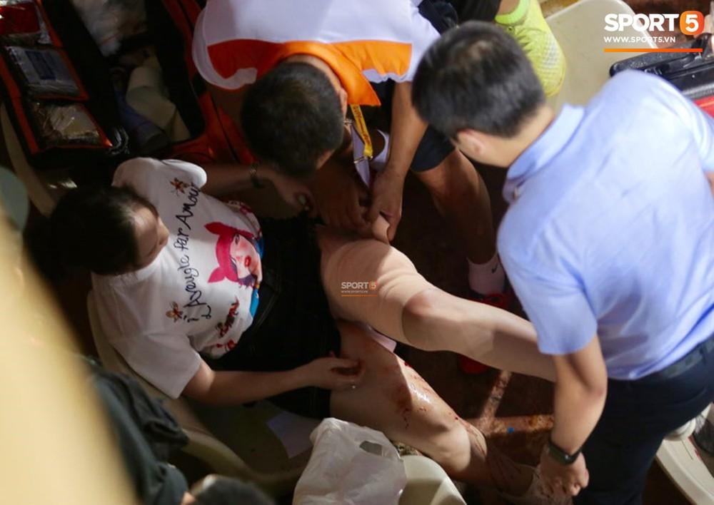 Fan nữ đổ máu vì bị pháo bắn trúng trên khán đài trận Hà Nội FC vs Nam Định - Ảnh 3.