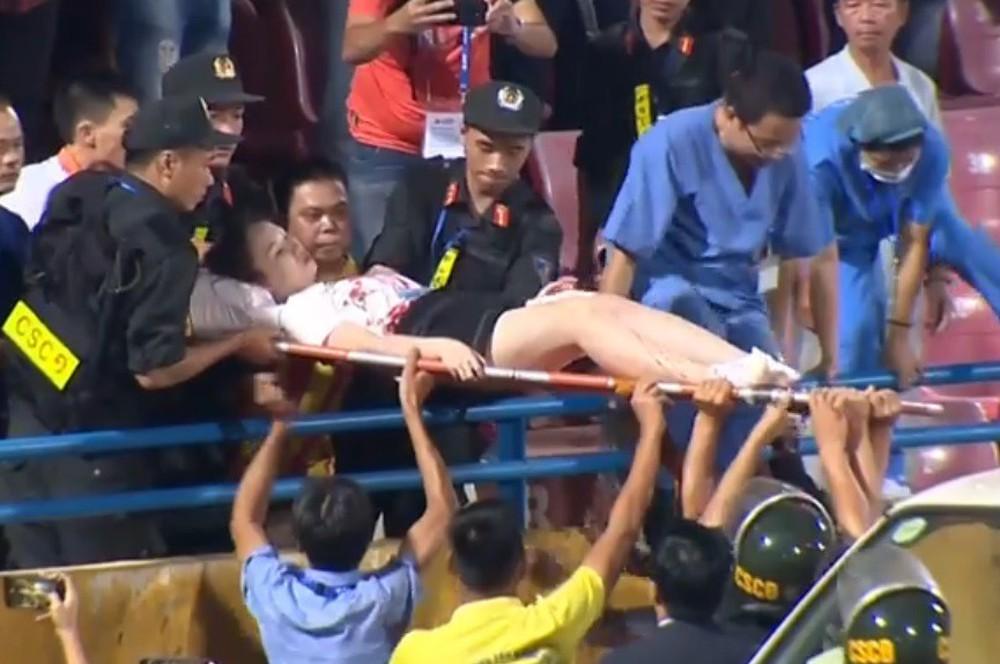 Fan nữ đổ máu vì bị pháo bắn trúng trên khán đài trận Hà Nội FC vs Nam Định - Ảnh 5.