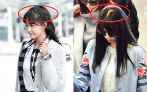 Sấy tóc như Yoona bảo sao tóc rụng, lộ cả mảng da đầu: Các nàng cũng nên cẩn thận đừng mắc sai lầm