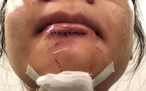 """Nữ gymer Hà Nội dính chấn thương nghiêm trọng khi tập cùng HLV, đại diện phòng gym thản nhiên: """"Mình lớn rồi chứ còn trẻ con đâu chị"""""""
