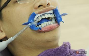 Chịu đựng những điều này nhưng có hàm răng trắng như sứ, bạn có chấp nhận không? - Ảnh 3.