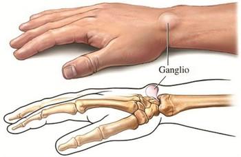 Xuất hiện cục u nổi bất thường ở cổ tay: Đừng bỏ qua vì đó có thể là dấu hiệu cảnh báo bệnh nguy hiểm - Ảnh 2.