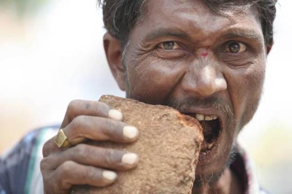 Anh Pakkirappa đuợc chẩn đoán mắc Hội chứng Pica.