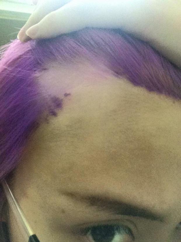 Mốt tẩy tóc và những tai nạn kinh hoàng - Ảnh 6.