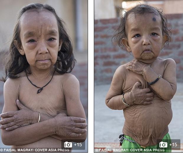 Cuộc sống tăm tối của những đứa trẻ có vẻ ngoài như các cụ già 80 tuổi - Ảnh 1.