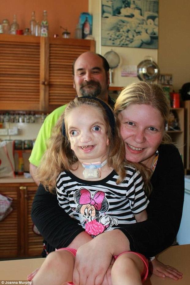 Vượt lên tất cả, cô bé 7 tuổi với gương mặt biến dạng này vẫn sống rất hạnh phúc - Ảnh 1.
