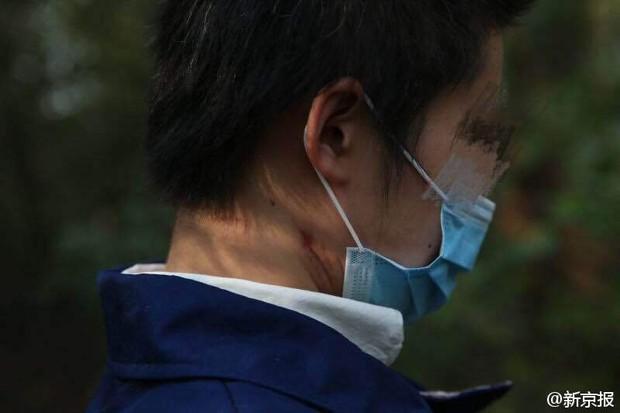 Những tình tiết bất ngờ trong vụ người phụ nữ bị hổ vồ trong công viên Bắc Kinh - Ảnh 4.