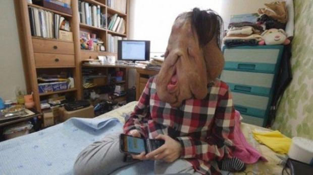 Cộng đồng mạng Hàn Quốc kêu gọi giúp đỡ người phụ nữ có gương mặt biến dạng vì mắc bệnh lạ - Ảnh 1.