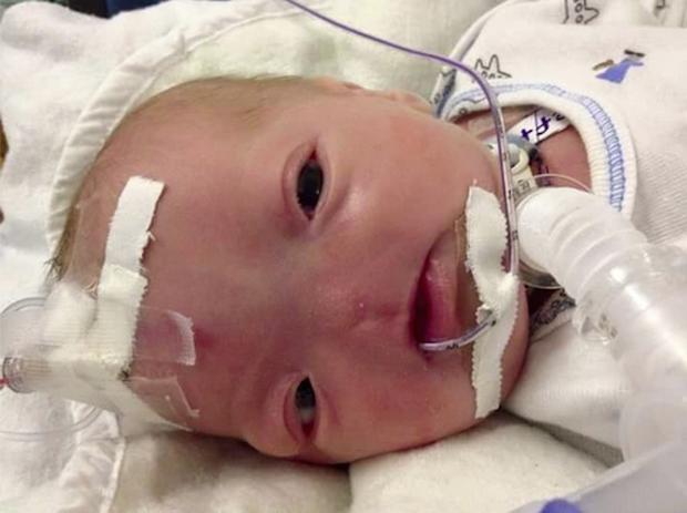 Dù không có mũi, nhưng cậu bé này vẫn được bình chọn là em bé có gương mặt đáng yêu nhất trên Facebook - Ảnh 1.