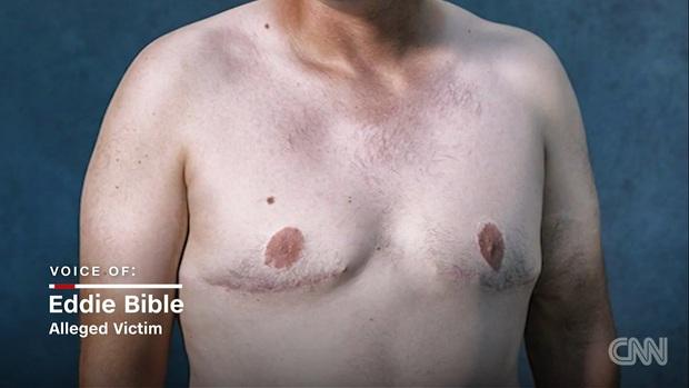 Mỹ: Hàng ngàn nam giới có ngực bự bất thường do sử dụng thuốc an thần - Ảnh 2.