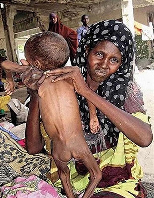 Chùm ảnh những đứa trẻ châu Phi gầy trơ xương vì đói sẽ khiến bạn không dám bỏ thừa đồ ăn thêm nữa - Ảnh 6.