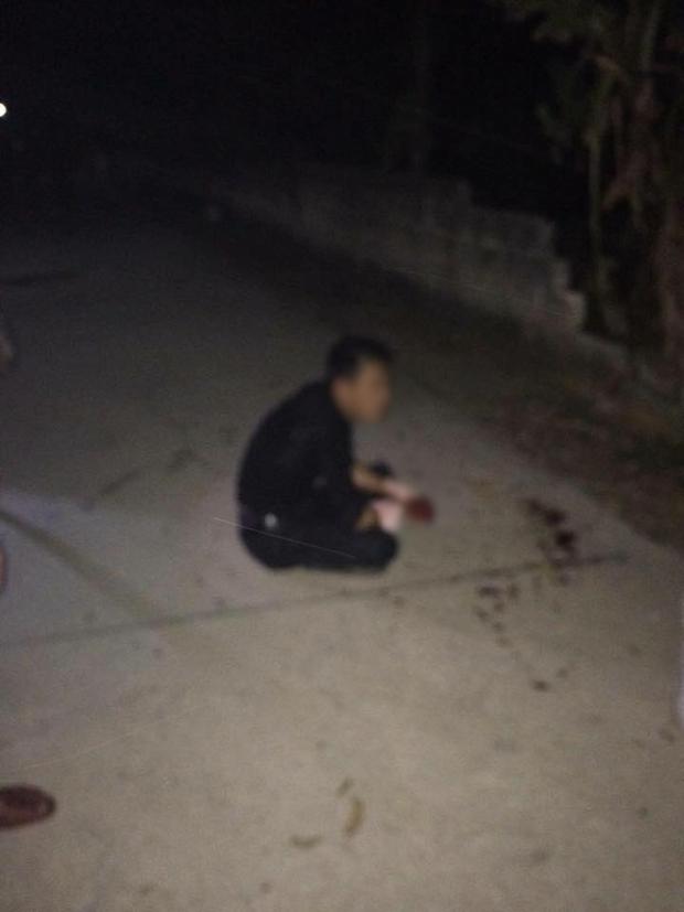 Trộm chó giữa đêm, nam thanh niên bị chém nát hai bàn tay - Ảnh 1.