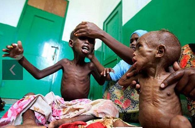 Chùm ảnh những đứa trẻ châu Phi gầy trơ xương vì đói sẽ khiến bạn không dám bỏ thừa đồ ăn thêm nữa - Ảnh 4.