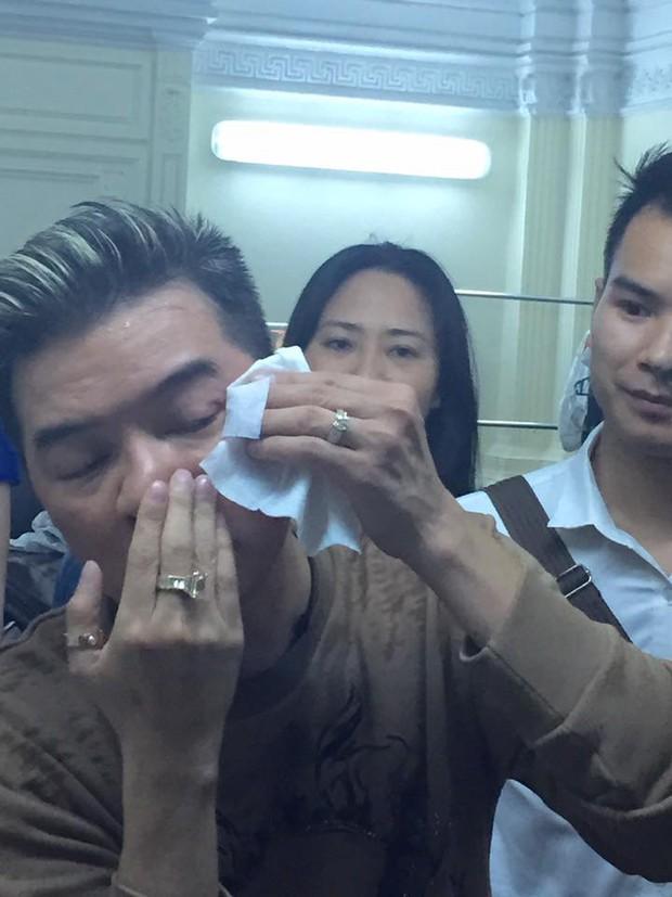 Diễn quá sung, Đàm Vĩnh Hưng gặp tai nạn chảy máu mắt - Ảnh 5.
