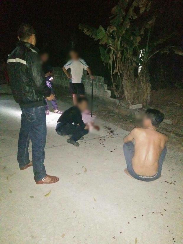 Trộm chó giữa đêm, nam thanh niên bị chém nát hai bàn tay - Ảnh 2.
