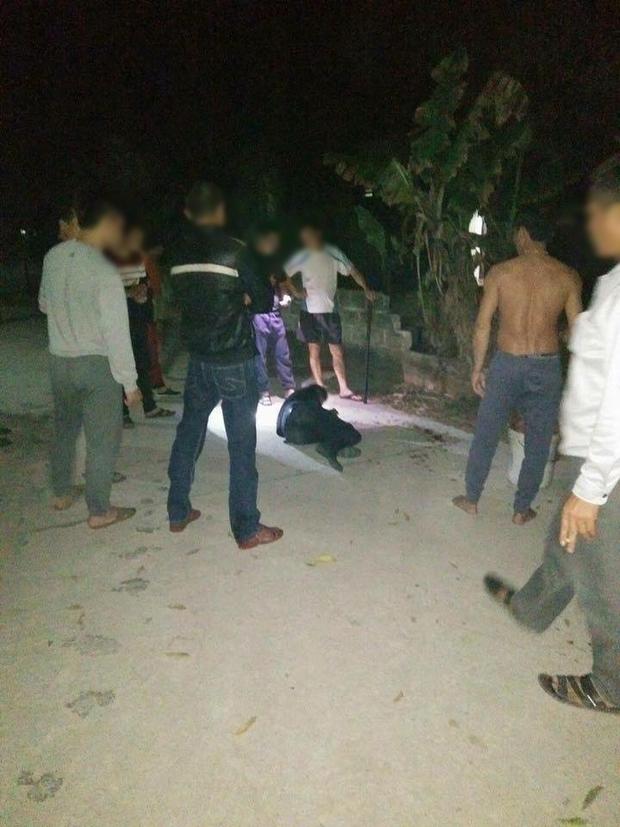 Trộm chó giữa đêm, nam thanh niên bị chém nát hai bàn tay - Ảnh 3.