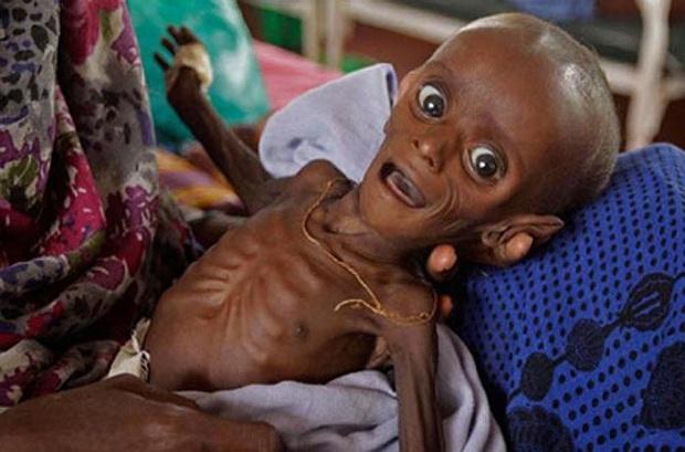 Chùm ảnh những đứa trẻ châu Phi gầy trơ xương vì đói sẽ khiến bạn không dám bỏ thừa đồ ăn thêm nữa - Ảnh 5.