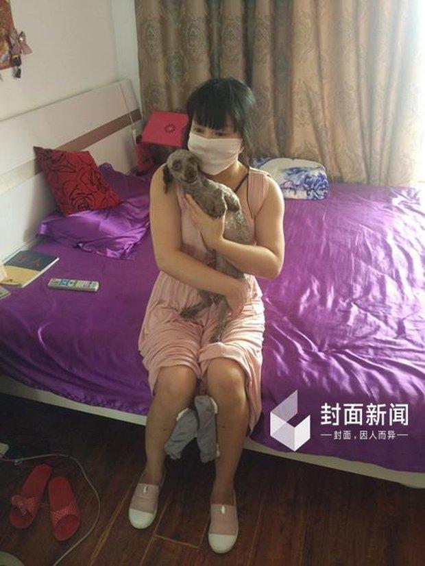 Hậu quả kinh hoàng của cô gái cuồng dao kéo nhất Trung Quốc với 200 lần phẫu thuật thẩm mỹ - Ảnh 4.