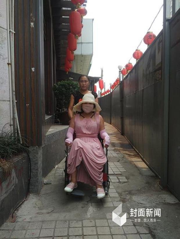 Hậu quả kinh hoàng của cô gái cuồng dao kéo nhất Trung Quốc với 200 lần phẫu thuật thẩm mỹ - Ảnh 1.