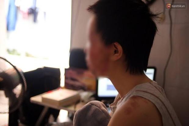 Nữ sinh từng bị tạt axit chấn động Sài Gòn: Em vẫn không hiểu mình đã làm gì sai... - Ảnh 3.