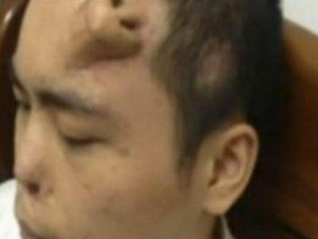 Trung Quốc giờ đã giỏi đến mức làm được cả... tai người fake, lại còn nuôi nó trên cánh tay - Ảnh 4.