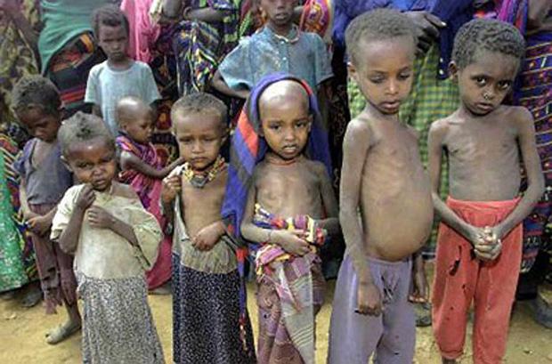 Chùm ảnh những đứa trẻ châu Phi gầy trơ xương vì đói sẽ khiến bạn không dám bỏ thừa đồ ăn thêm nữa - Ảnh 14.