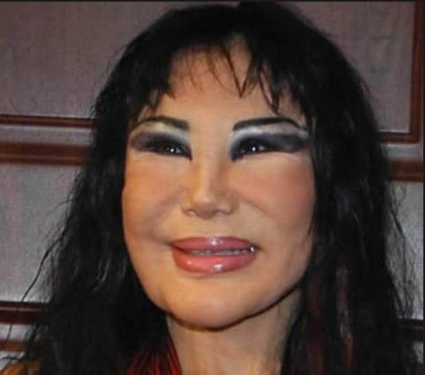 Ham đẹp như gái Hàn, nhiều phụ nữ Trung Quốc ôm hận thiên thu vì phẫu thuật thẩm mỹ hỏng - Ảnh 38.