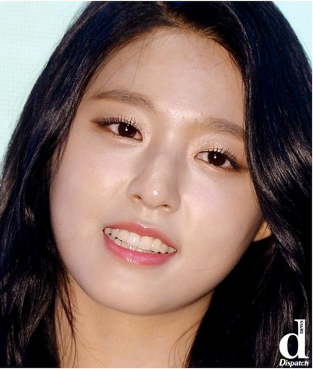 Cận cảnh làn da của 25 mỹ nhân đình đám nhất Hàn Quốc - Ảnh 25.