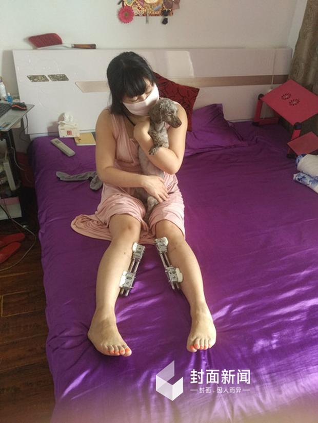 Hậu quả kinh hoàng của cô gái cuồng dao kéo nhất Trung Quốc với 200 lần phẫu thuật thẩm mỹ - Ảnh 3.
