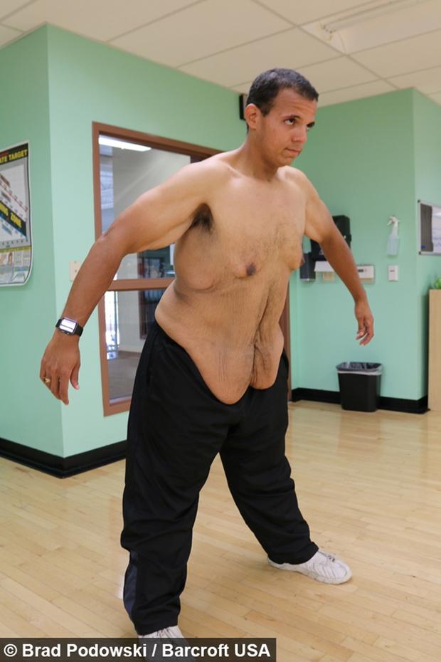 Sau khi xem xong chùm ảnh này, có lẽ bạn sẽ không còn điên cuồng giảm cân nữa - Ảnh 9.