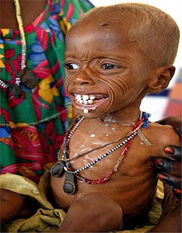 Chùm ảnh những đứa trẻ châu Phi gầy trơ xương vì đói sẽ khiến bạn không dám bỏ thừa đồ ăn thêm nữa - Ảnh 8.