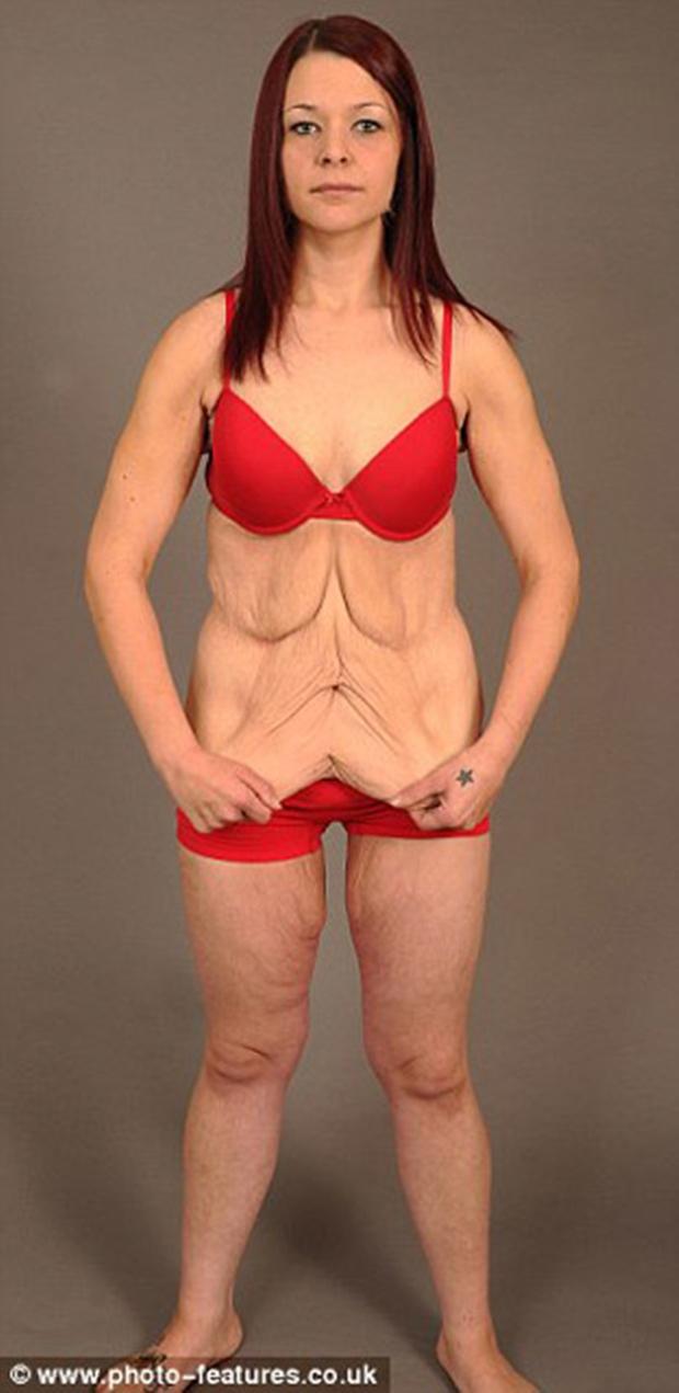 Sau khi xem xong chùm ảnh này, có lẽ bạn sẽ không còn điên cuồng giảm cân nữa - Ảnh 12.