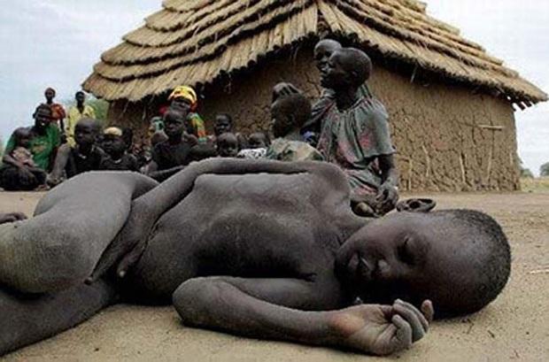 Chùm ảnh những đứa trẻ châu Phi gầy trơ xương vì đói sẽ khiến bạn không dám bỏ thừa đồ ăn thêm nữa - Ảnh 15.