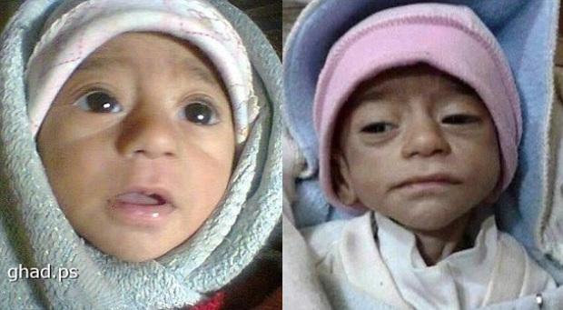 Đau lòng trước hình ảnh những đứa trẻ bị IS bỏ đói đến chết tại Syria - Ảnh 2.