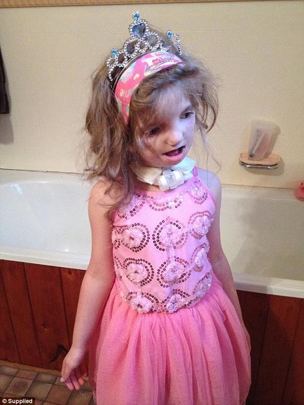 Vượt lên tất cả, cô bé 7 tuổi với gương mặt biến dạng này vẫn sống rất hạnh phúc - Ảnh 2.