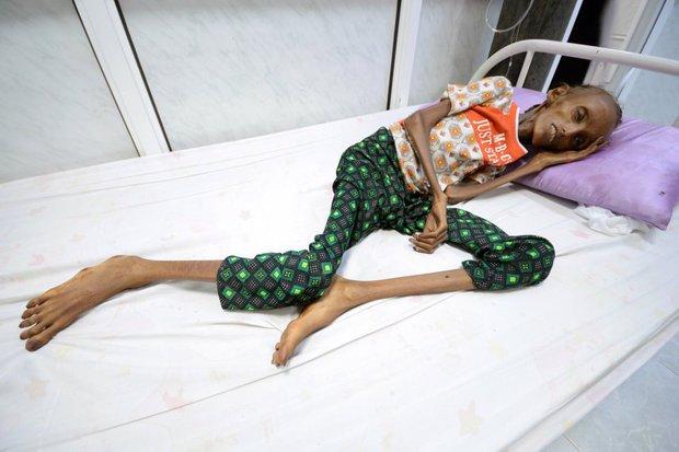 Những thân hình chỉ còn da bọc xương gây sốc: Cả một thế hệ của Yemen đang đứng trước nguy cơ diệt vong vì nạn - Ảnh 2.