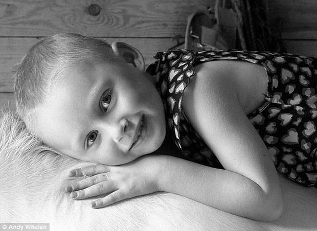 Bức ảnh bé gái 4 tuổi gồng mình chiến đấu với căn bệnh ung thư khiến ai cũng nhói lòng - Ảnh 3.