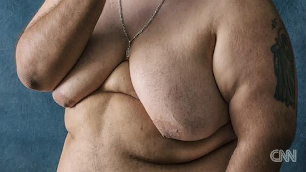 Mỹ: Hàng ngàn nam giới có ngực bự bất thường do sử dụng thuốc an thần - Ảnh 3.