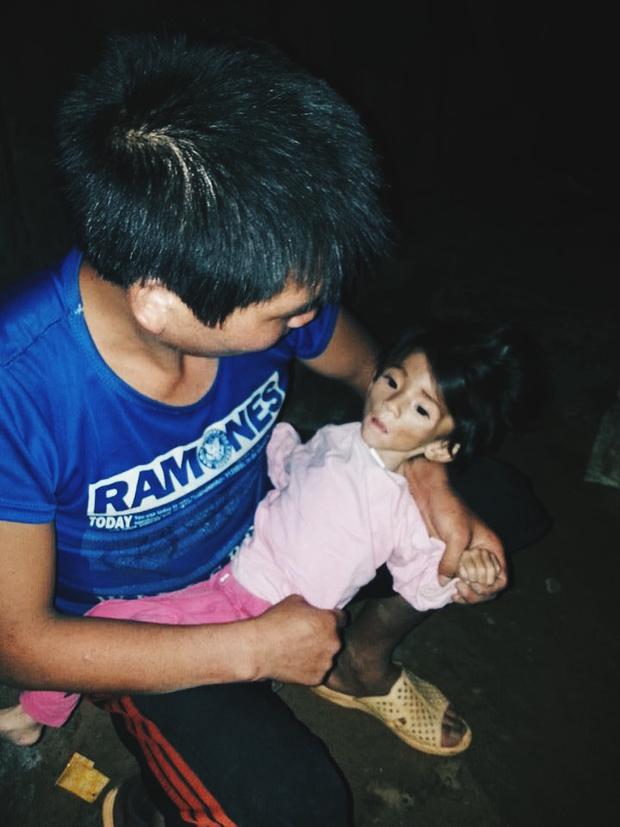 Bé gái 14 tháng tuổi nặng 3,5kg vì cha nghèo chỉ biết nuôi con bằng nước cơm loãng - Ảnh 4.