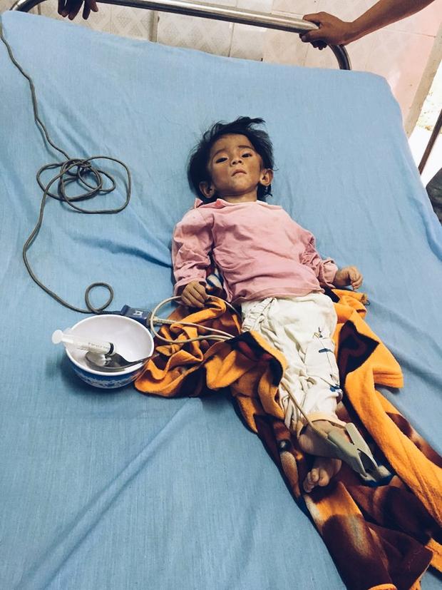 Bé gái 14 tháng tuổi nặng 3,5kg vì cha nghèo chỉ biết nuôi con bằng nước cơm loãng - Ảnh 1.