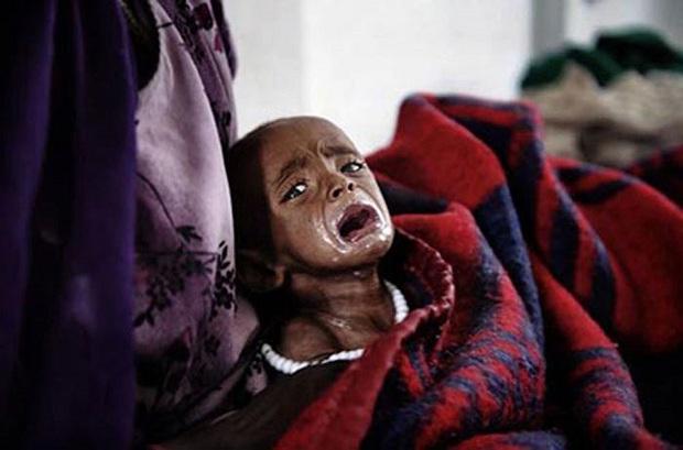 Chùm ảnh những đứa trẻ châu Phi gầy trơ xương vì đói sẽ khiến bạn không dám bỏ thừa đồ ăn thêm nữa - Ảnh 9.
