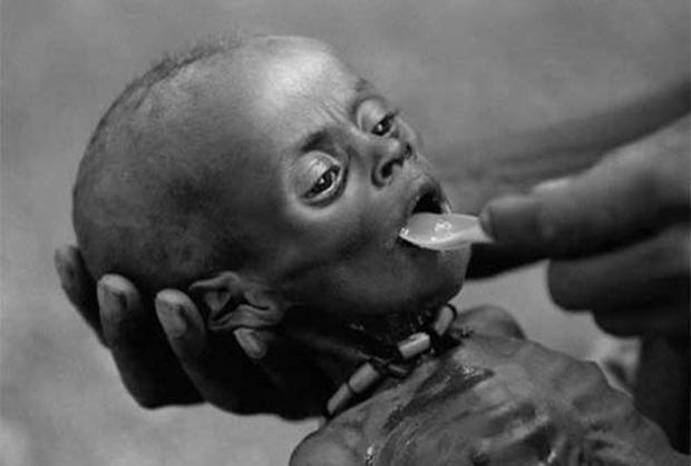 Chùm ảnh những đứa trẻ châu Phi gầy trơ xương vì đói sẽ khiến bạn không dám bỏ thừa đồ ăn thêm nữa - Ảnh 17.