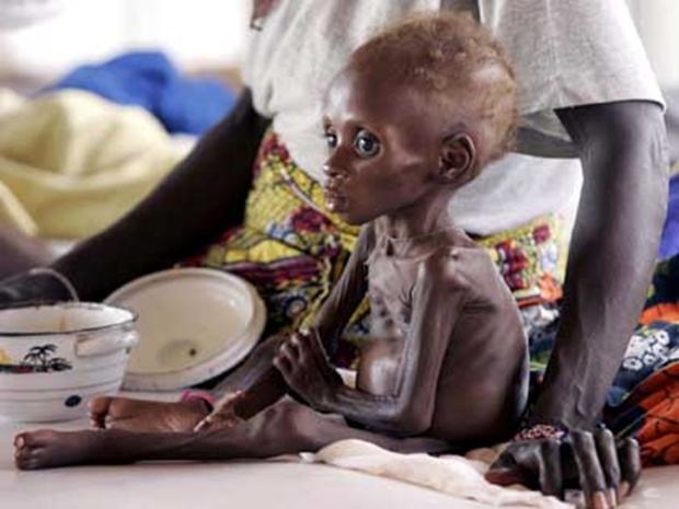 Chùm ảnh những đứa trẻ châu Phi gầy trơ xương vì đói sẽ khiến bạn không dám bỏ thừa đồ ăn thêm nữa - Ảnh 24.