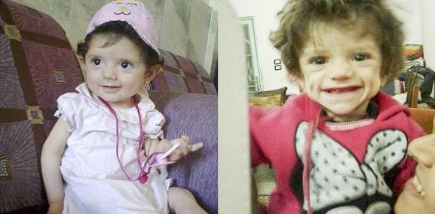 Đau lòng trước hình ảnh những đứa trẻ bị IS bỏ đói đến chết tại Syria - Ảnh 3.