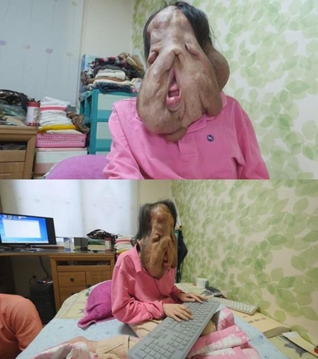 Cộng đồng mạng Hàn Quốc kêu gọi giúp đỡ người phụ nữ có gương mặt biến dạng vì mắc bệnh lạ - Ảnh 3.