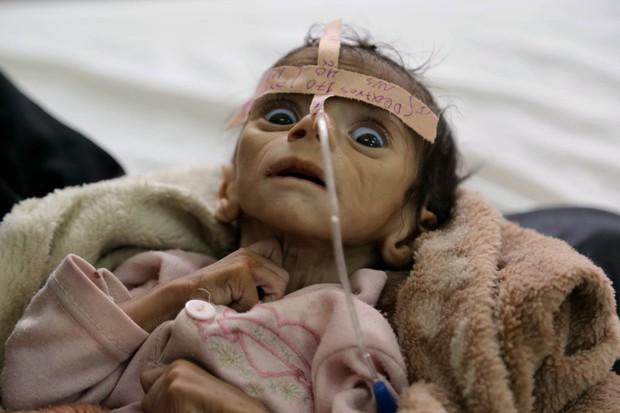 Những thân hình chỉ còn da bọc xương gây sốc: Cả một thế hệ của Yemen đang đứng trước nguy cơ diệt vong vì nạn - Ảnh 3.