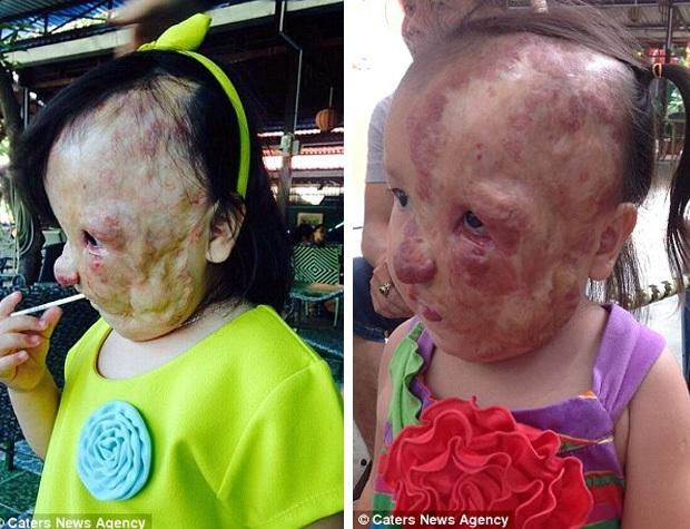 Bé gái 5 tuổi mang khối u che hết nửa gương mặt bất ngờ được một người xa lạ cứu sống - Ảnh 3.
